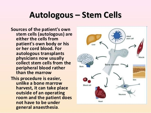 Autologous stem-cell transplantation (also called ...