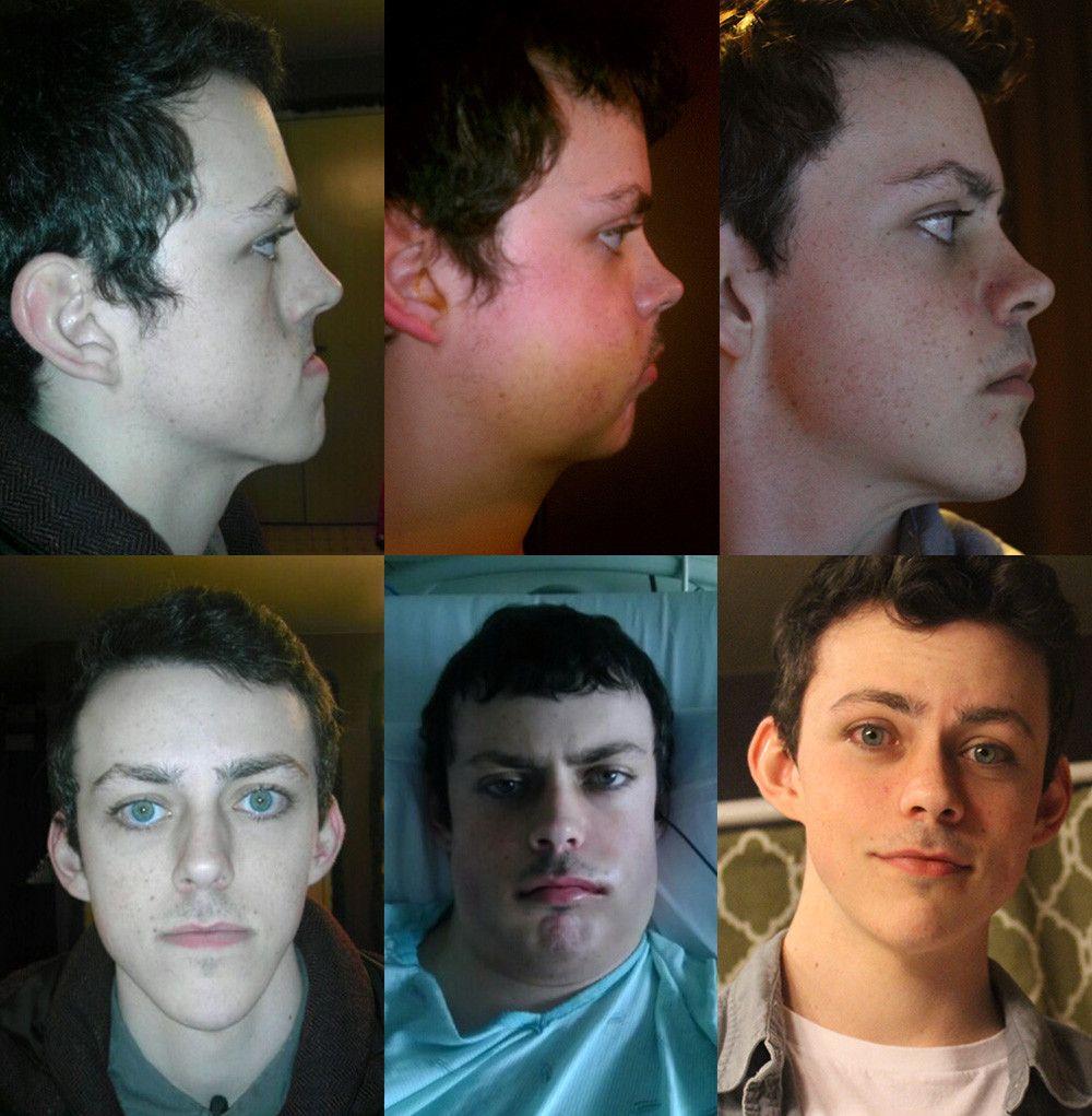 Double jaw surgery jaw surgery double jaw surgery hair