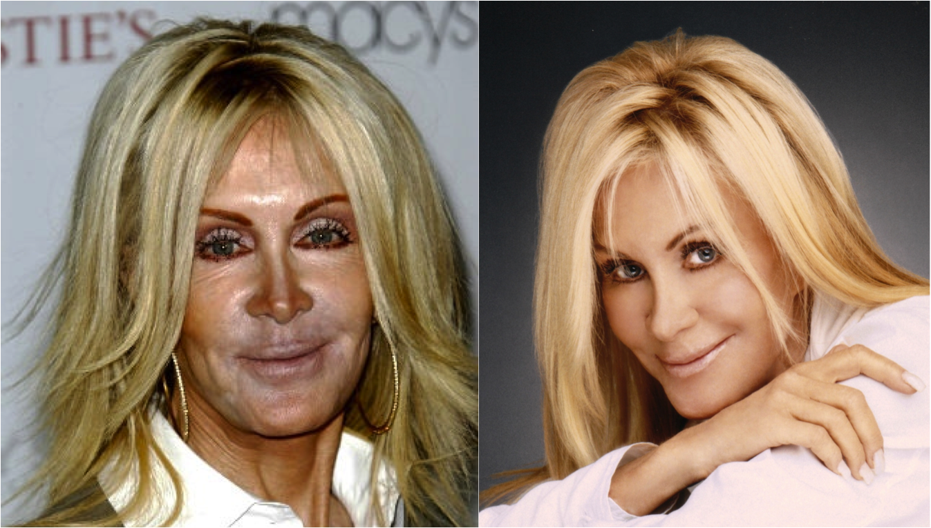 celebrity plastic surgery – is it just bad photos? | just the way