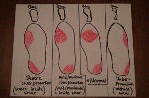 mild overpronation shoes