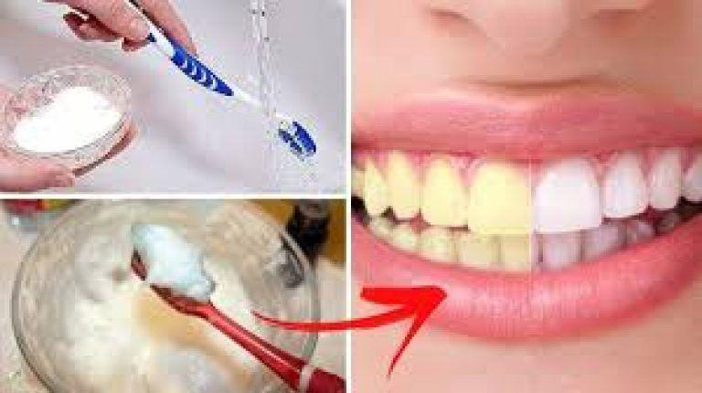 Truc incroyable pour blanchir les dents en 2 minutes en