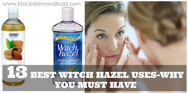 Witch Hazel Uses- Why you must have it