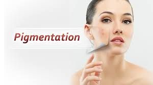 You can get rid of hyperpigmentation with the help of some simple and easy remedies at SNO Hospital Ludhiana.