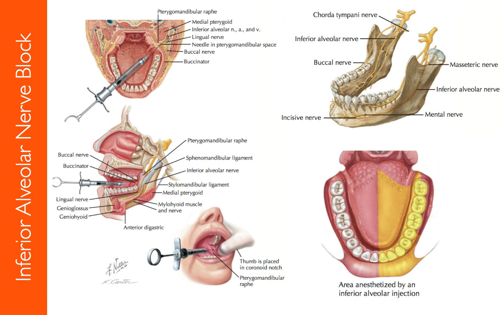 mandibular-nerves-block-1.jpg 1,680×1,050 pixels | 2nd semester ...