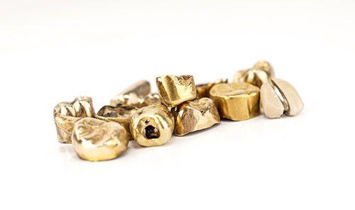 Zahngold Ankauf Zahngold Goldkronen Dentalgold