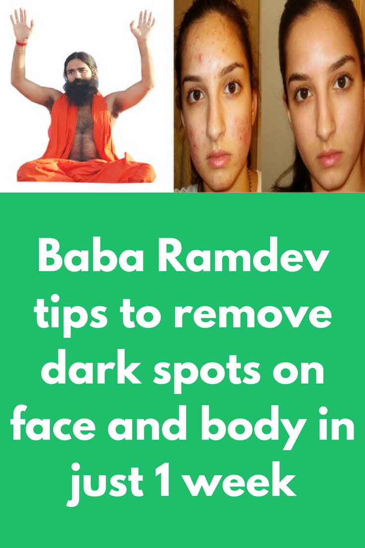 Baba Ramdev tips to remove dark spots on face and body in just 12