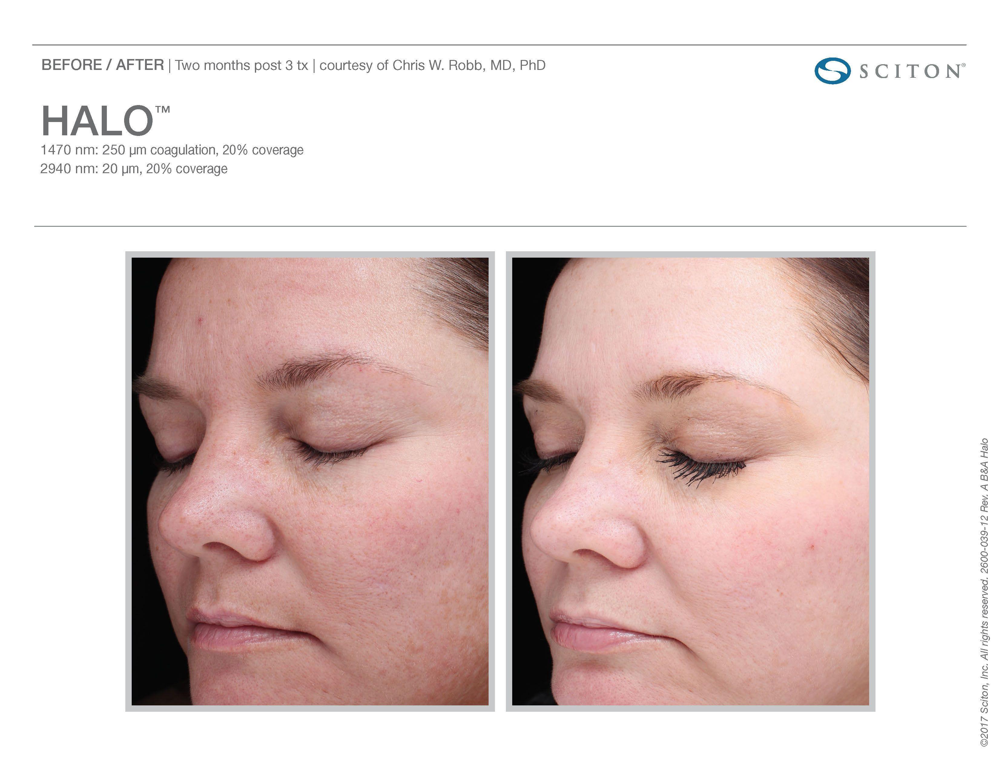 2 Months After Halo Skin Rejuvenation Skin Rejuvenation Skin Care Procedures Laser Rejuvenation