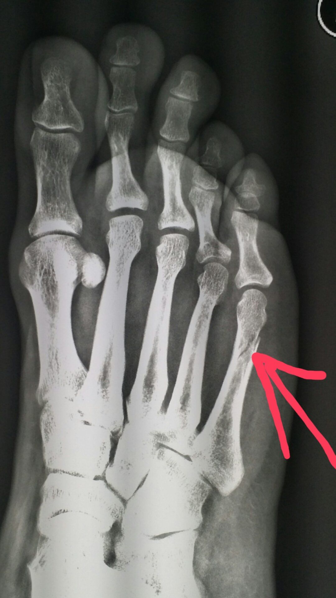 Mva Online Services >> #Foot #xray shows a #fracture of the fifth #metatarsal #bone after #trauma. #radiologist # ...