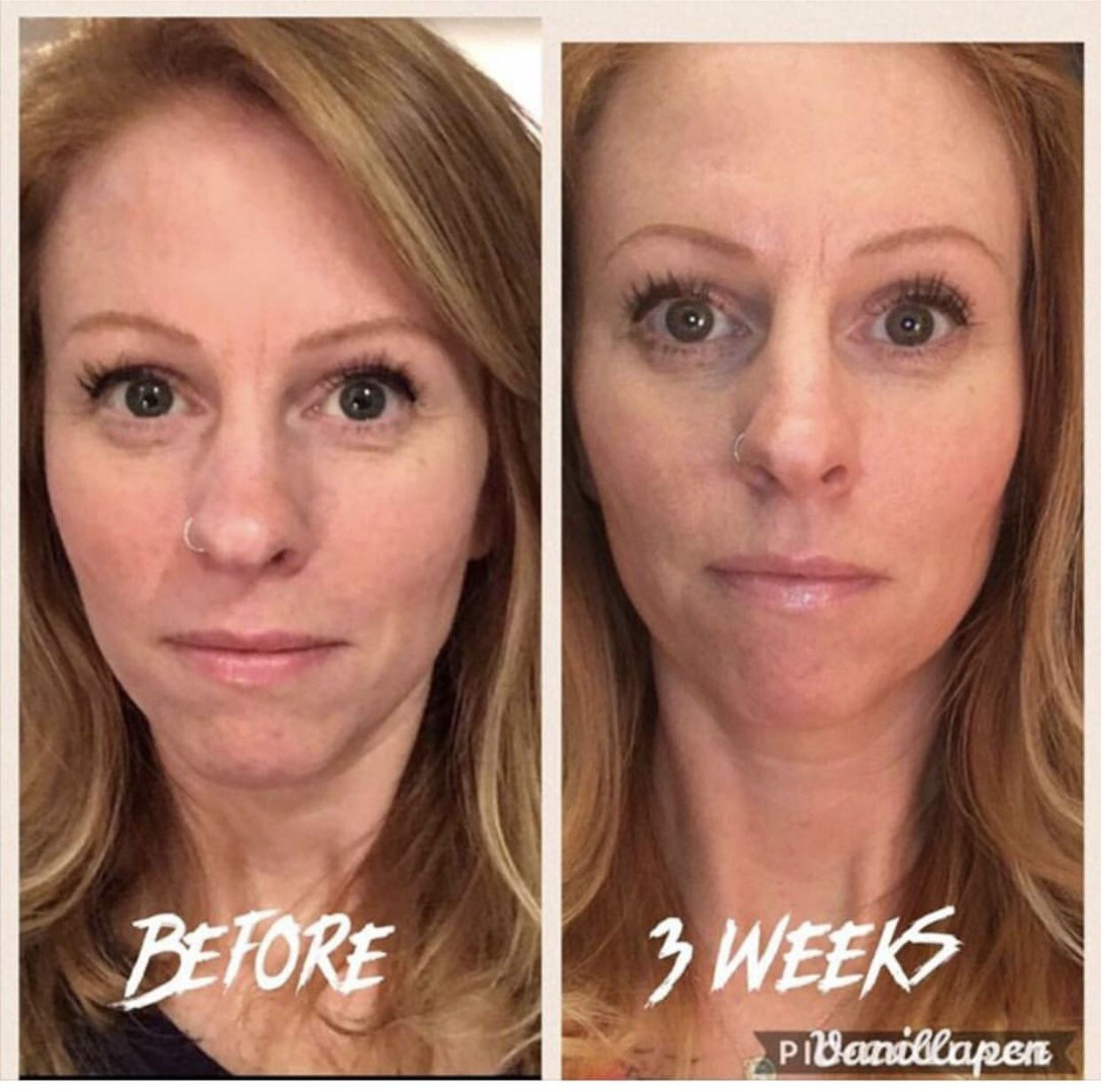 3 Weeks From Liquid Biocell Life Learn More At Https Www Modere