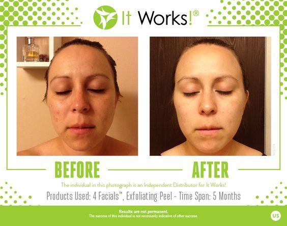 Amazing Results Using Our Skin Care Line For More Information Please Join My Fb Page At Https Www Faceboo It Works Facials Exfoliating Peel Skin Care Acne