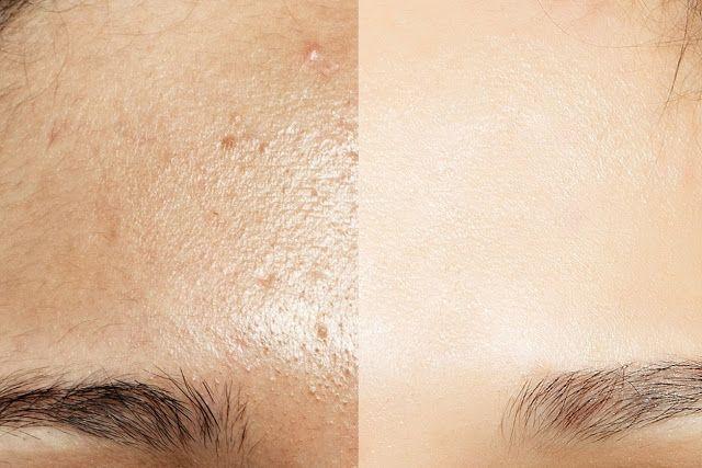 Conseils beauté pour éliminer le brillant sur le visage toute la journée pour la peau grasse