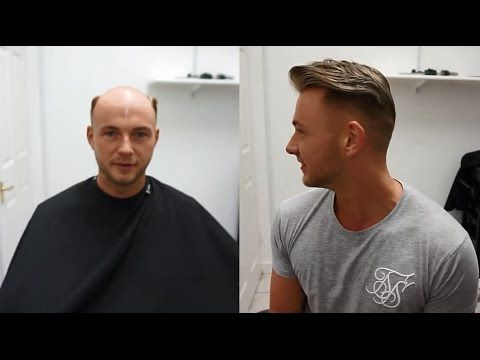 How To Attach A Wig For Men Hair Replacement System