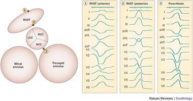 Electrocardiographic characteristics of premature