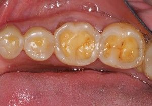 Cool #toothtruths A tooth (plural teeth) is a small, calcified ...