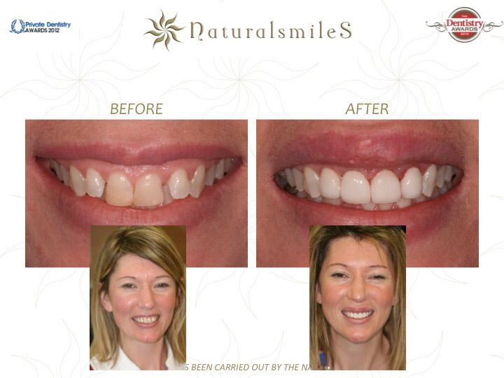 Before & After Smile