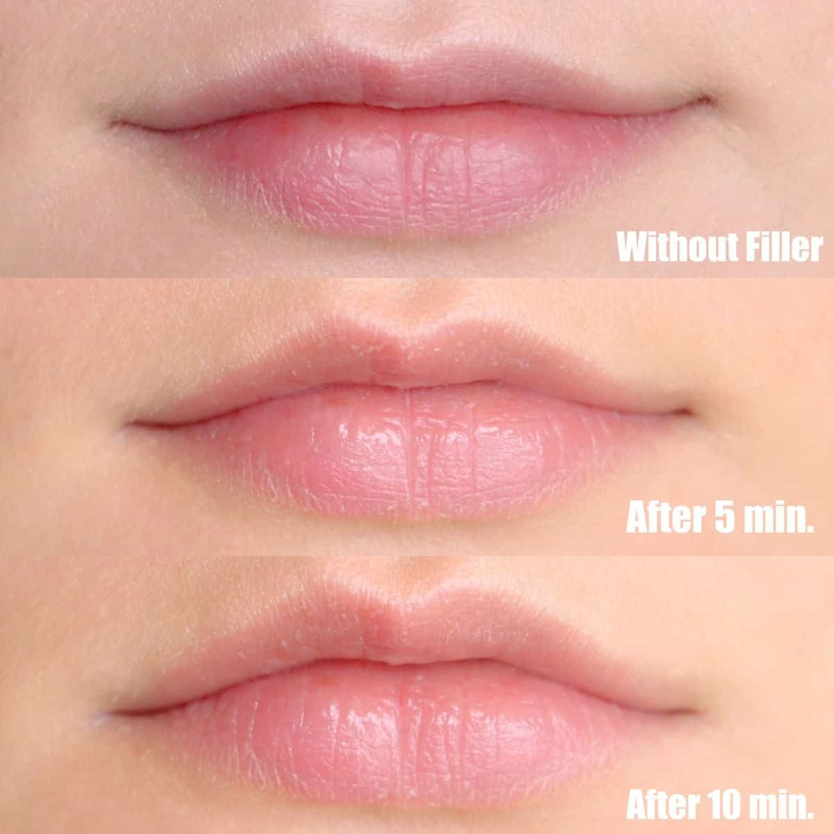 Photo of DermoFuture Hyaluronic Lip Filler Review/Demo | Beauty Conspirator