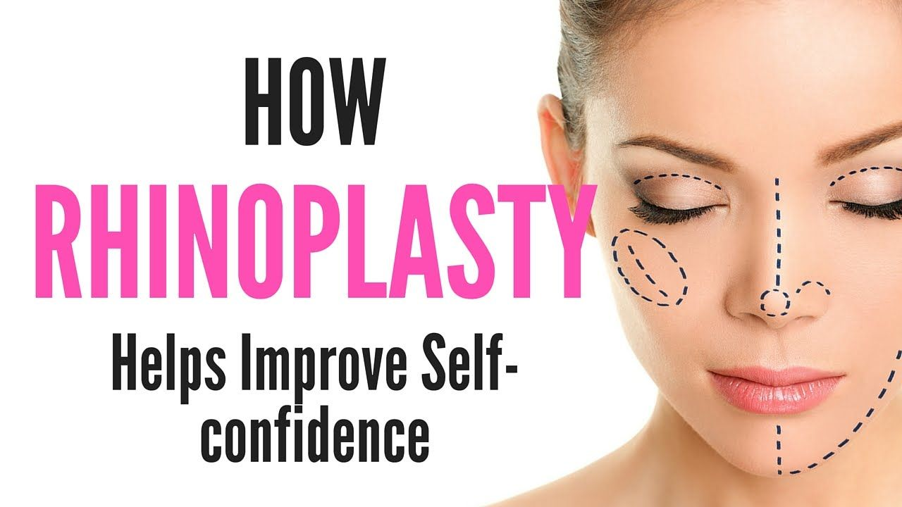 How Rhinoplasty Helps Improve Selfconfidence