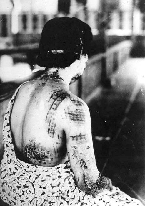 Hiroshima: A Visual Record . Her skin was dermagraphed by the design of her kimono (the darker ink burned faster, permanently imprinting her).