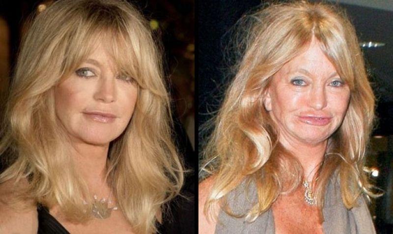 Celebrity Surgery Gone Wrong Celebrity Facelifts Gone Bad