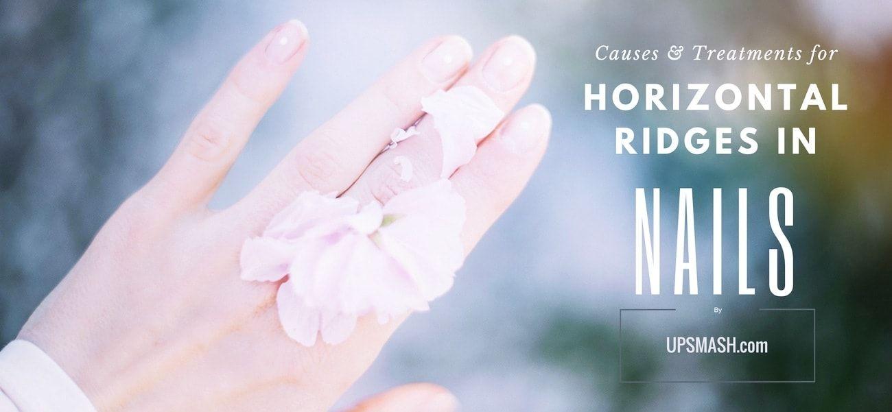 Horizontal Ridges in Nails – aka Beau Lines: Causes and Treatment ...
