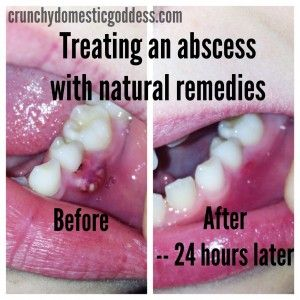 Treating a tooth abscess naturally  | NATURAL LIVING | Tooth
