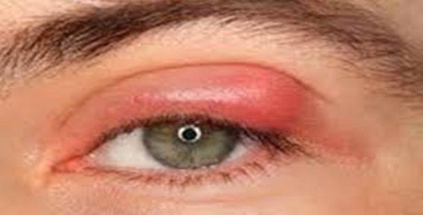 Obat Tradisional Kelopak Mata Bengkak Sebelah Tanpa Efek Samping - Cara mengatasi kelopak mata bengkak sebelah secara alami dan aman tanpa efek samping yakni hanya dengan Eye Care Softgel suplemen kesehatan terbaik yang diformulasikan khusus untuk mengatasi dan mencegah berbagai masalah pada mata Anda.  Eye Care Softgel satu-satunya Obat Mata Bengkak Paling Ampuh dari PT. Green World Global yang telah banyak terbukti khasiatnya. Untuk informasi lebih lengkap, simak penjelasannya berikut ini…