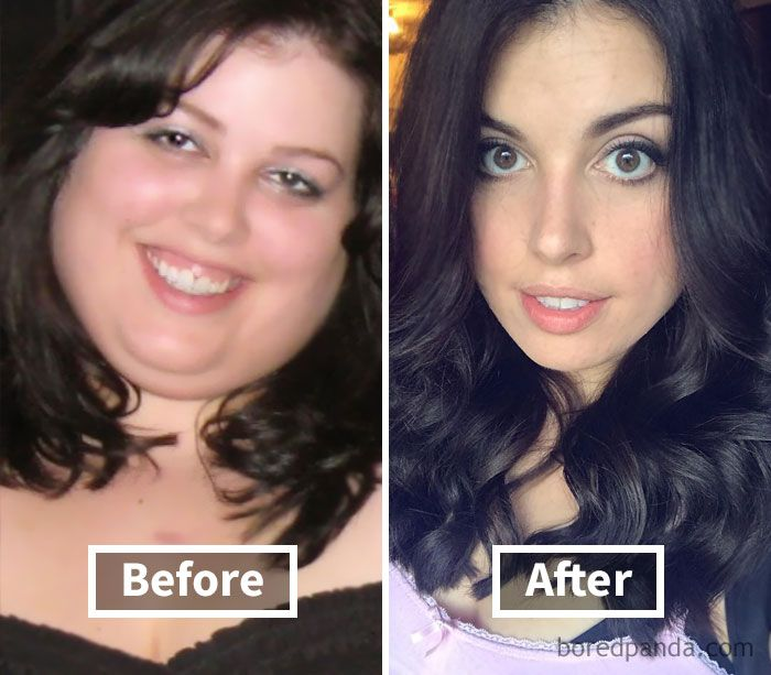 Prescription weight loss pills to increase metabolism image 1
