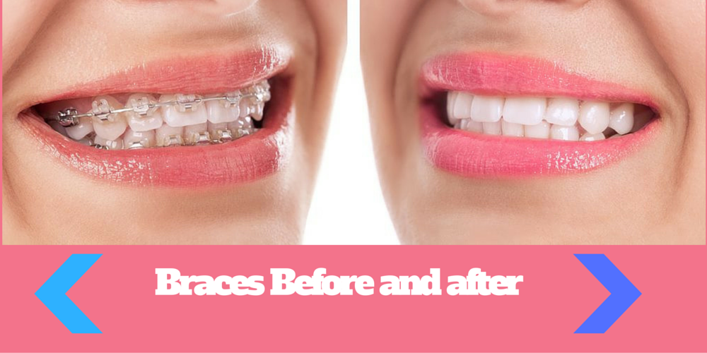 how to put elastics after jaw surgery