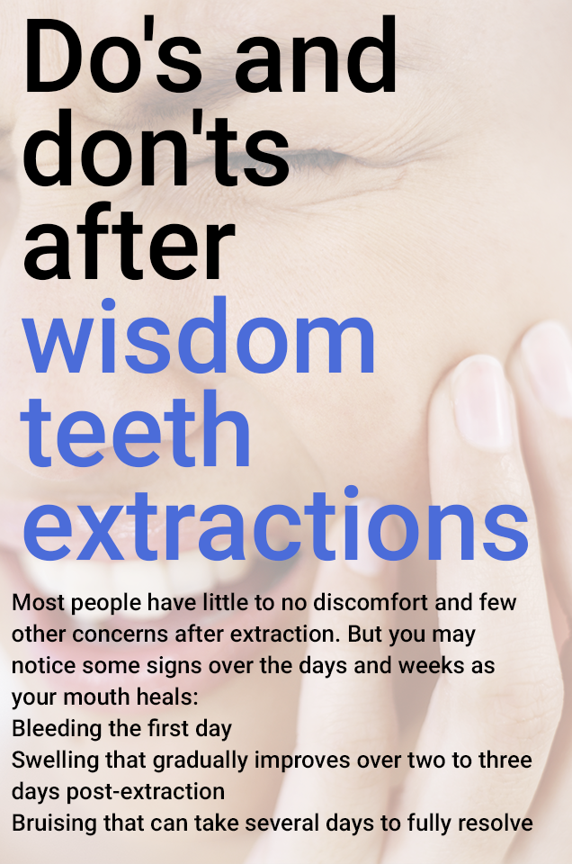 Pin On Teeth Extractions