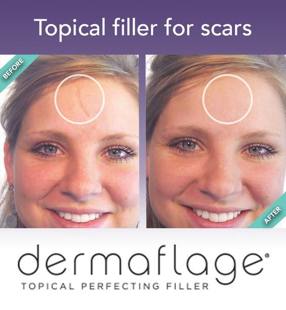 Before And After Using Dermaflage For Facial Scar Concealment Diy