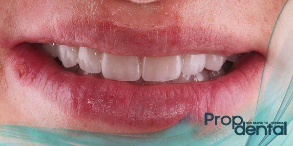 trozo de diente roto Piece of broken tooth