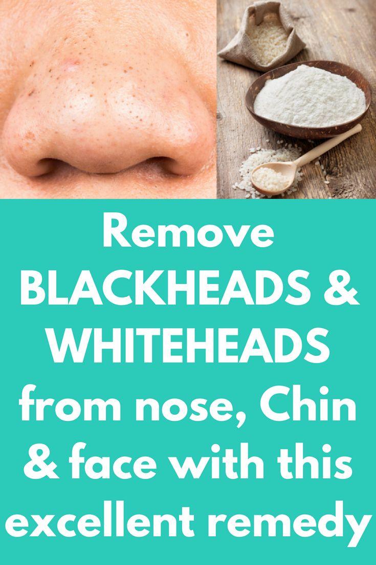 I got rid my BLACKHEADS permanently in  week Remove BLACKHEADS