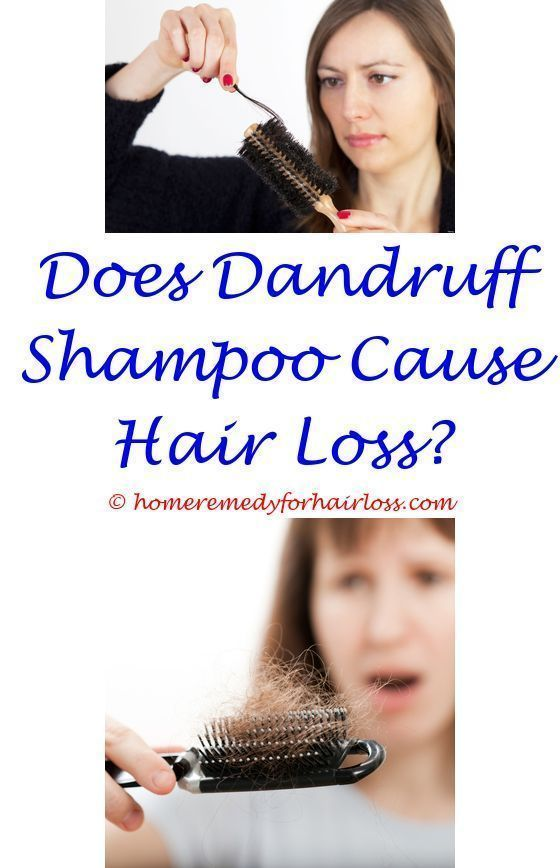 type 13 diabetes hair loss - women hair loss indian.clear scalp ...
