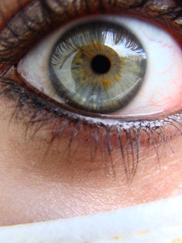 Heterochromia. Gray + tan.
