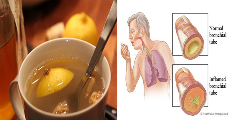 3 Ingredient Remedy That Clears Lung Mucus Immediately