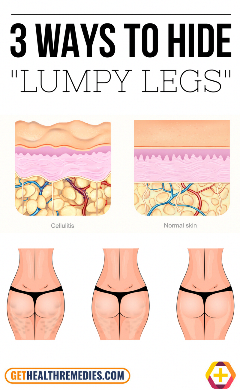 a5e063e8a99b5b66793bc9ee92e025bb - How To Get Rid Of Cellulite On Bottom And Thighs
