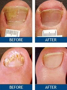 Nail Fungus Pictures Before And After Toenail Laser Treatment