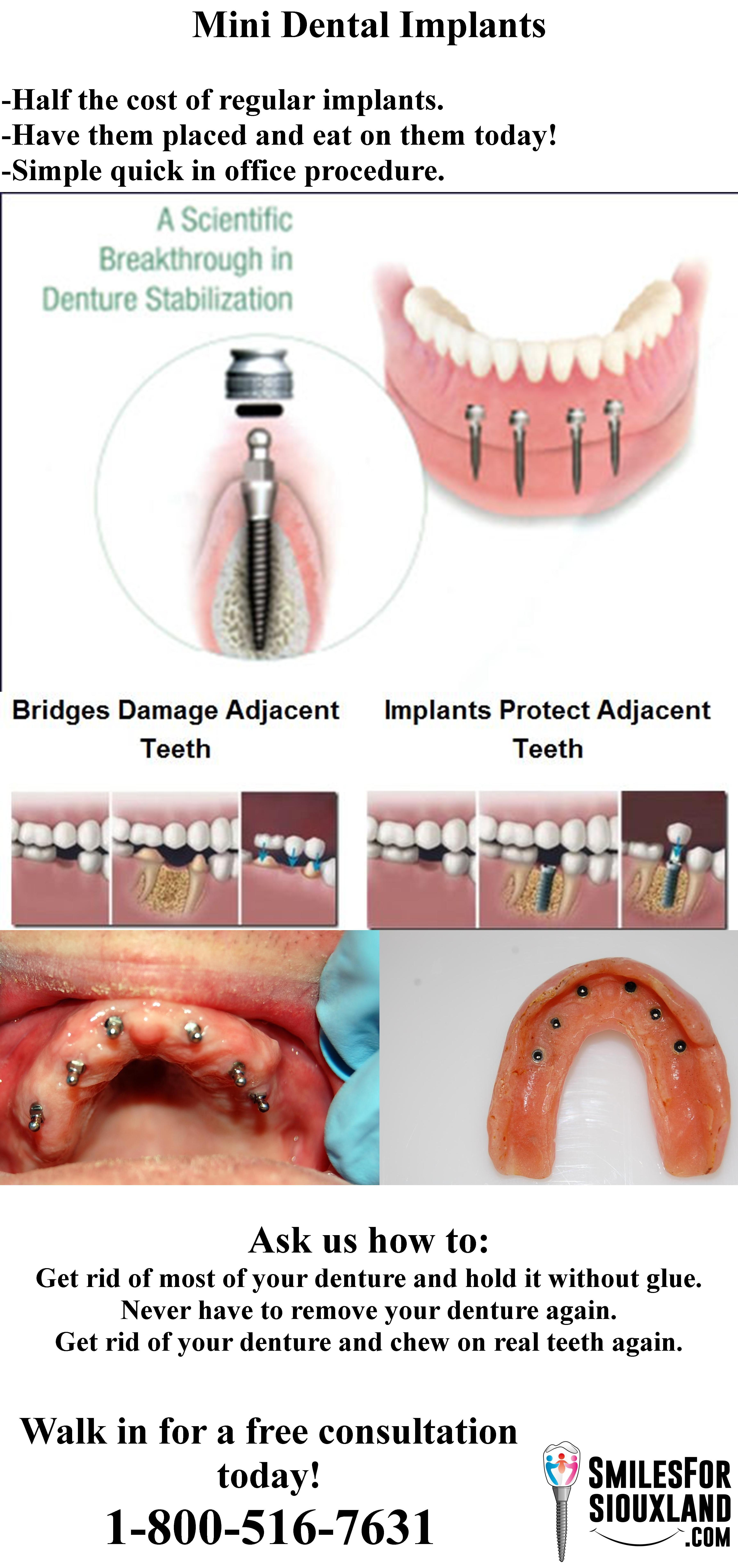 How mini dental implants help people mini dental