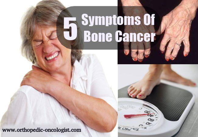 Bone cancer ribs