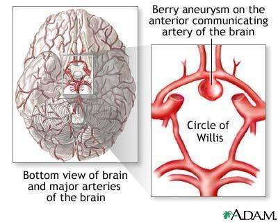 Cerebral Aneurysm National Library Of Medicine Brain Aneurysm