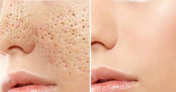 Photo of Remèdes Contre les Pores Dilatés   Beauté et Hygiène   Remèdes de Grand-Mère