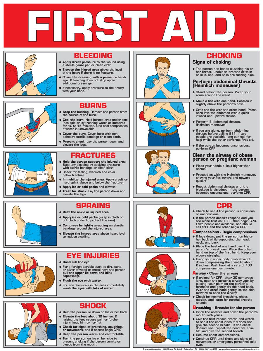photo regarding Cpr Posters Free Printable titled Absolutely free+Choking+Security+Posters+Initial+Help+Posters 1st Assistance