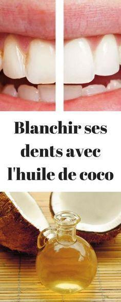 beaut comment blanchir ses dents gr ce l 39 huile de coco relaxation pinterest beauty. Black Bedroom Furniture Sets. Home Design Ideas