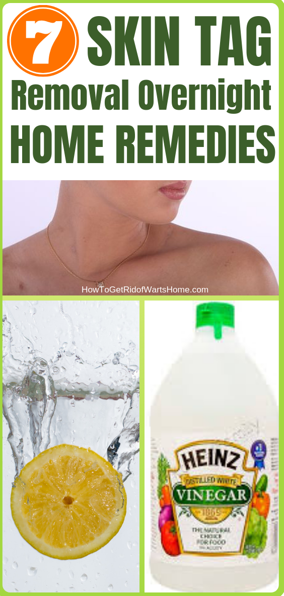 7 Skin Tag Removal Overnight Home Remedies 7 Skin Tag Removal Overnight Home Remedies
