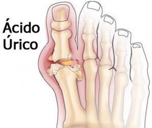 sintomas de acido urico en el talon colchicina para la gota aguda remedios para el dolor por acido urico