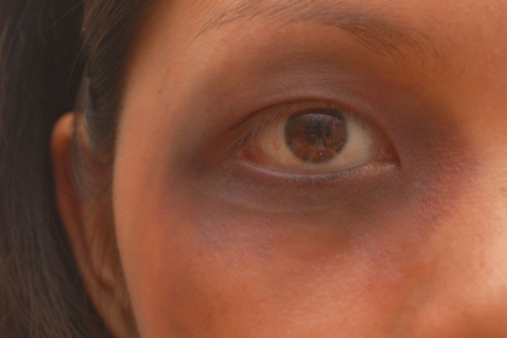 Make A Fake Black Eye Makeup Stuff Pinterest Black Eyed And Eye