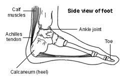The Ultimate Guide to Treating and Preventing Achilles