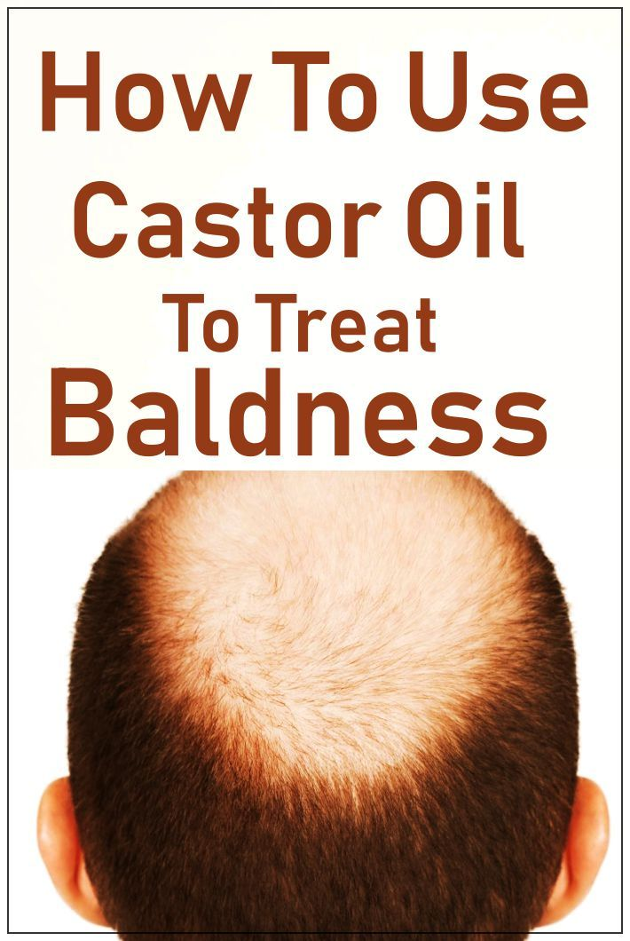 How To Treat Baldness With Castor Oil? -   12 hair Growth for men ideas