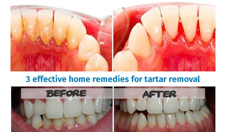 how to remove tartar from teeth at home naturally