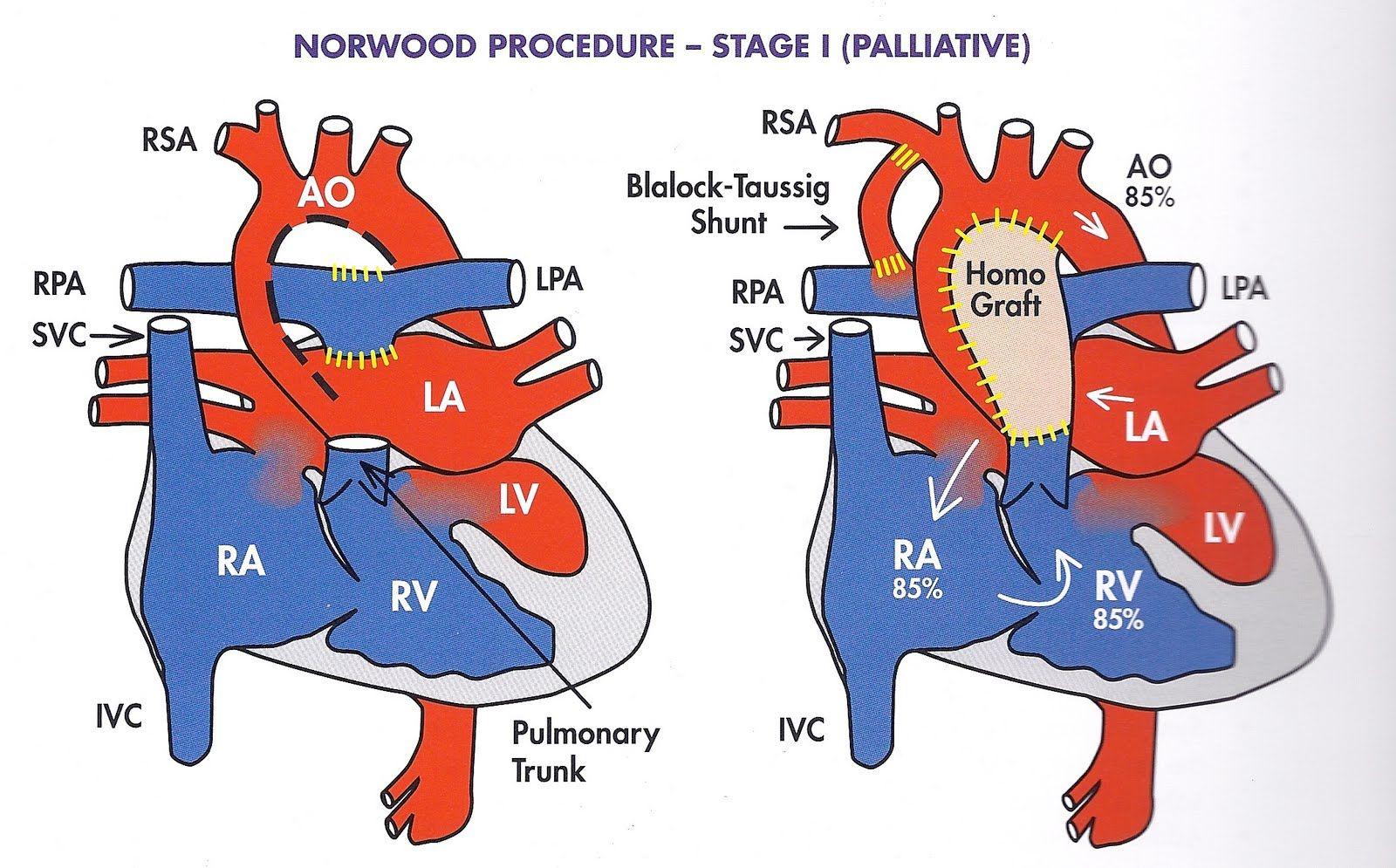 Pin by nonas arc on Tricuspid Atresia Tricuspid valve
